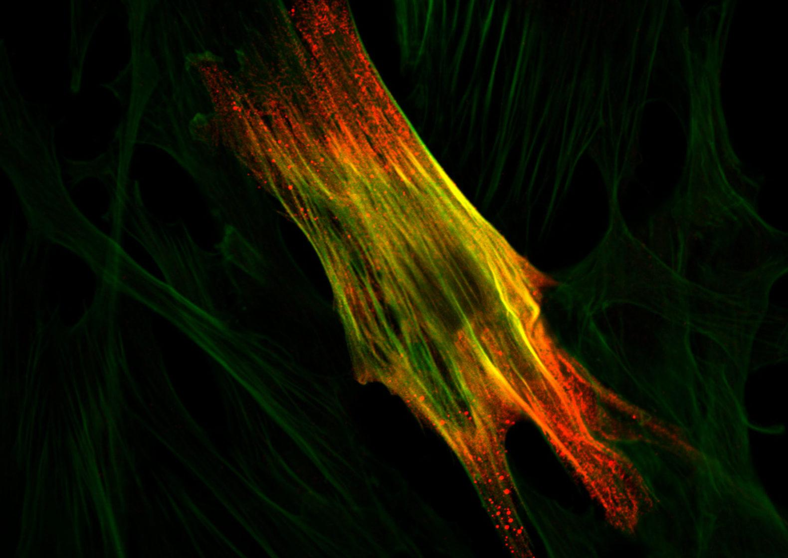Immunoflourescence of a smooth muscle cell. Credit: Beano5.
